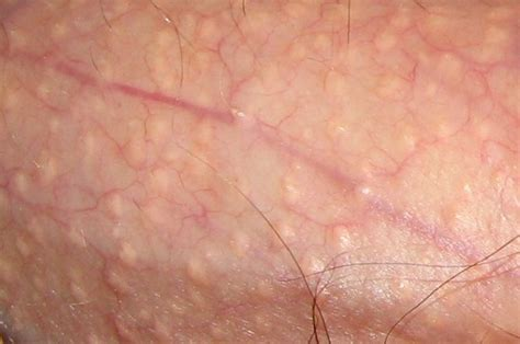 How to Get Rid of Unaesthetic Skin Defects Naturally